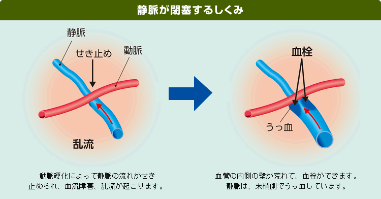 網膜静脈閉塞症